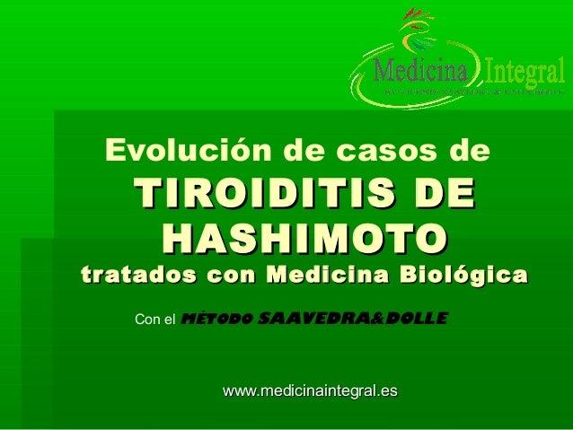 Evolución de casos de TIROIDITIS DETIROIDITIS DE HASHIMOTOHASHIMOTO tratados con Medicina Biológicatratados con Medicina B...