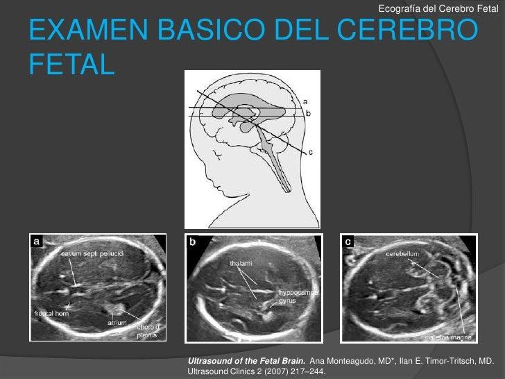 Evaluacion ecografica del sistema nervioso fetal