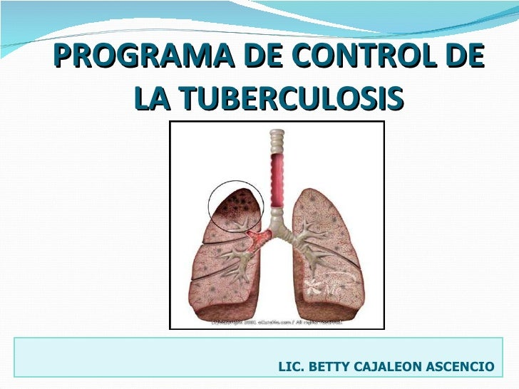 PROGRAMA DE CONTROL DE LA TUBERCULOSIS   LIC. BETTY CAJALEON ASCENCIO