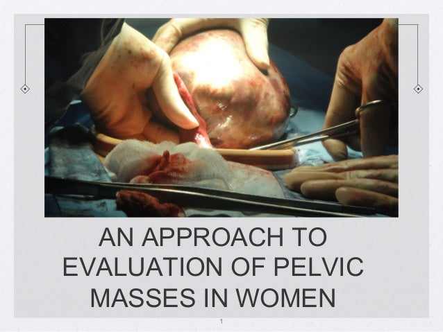 AN APPROACH TOEVALUATION OF PELVIC  MASSES IN WOMEN          1