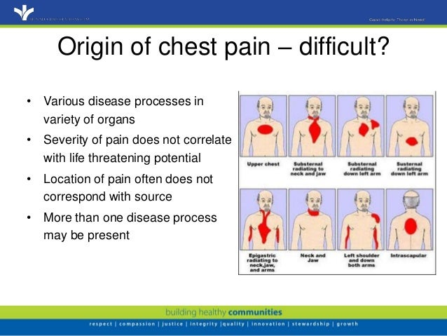 Evaluation Of Chest Pain In Primary Care