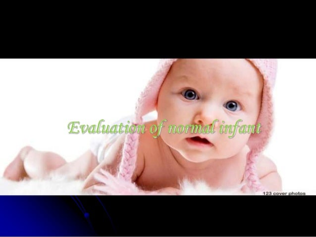 Evaluation Of Non Seeing Infant