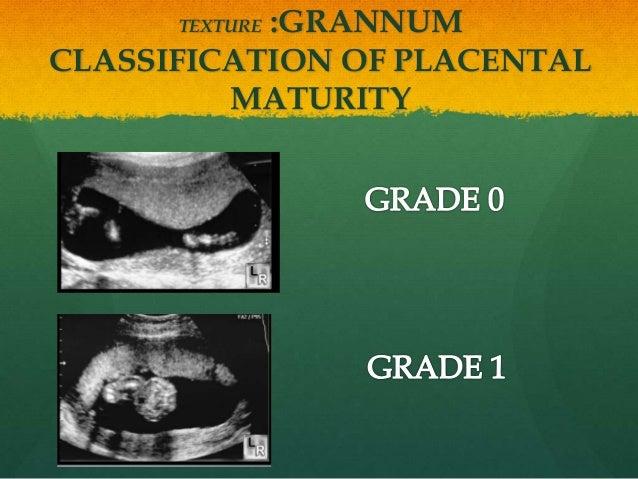 TEXTURE :GRANNUM CLASSIFICATION OF PLACENTAL MATURITY