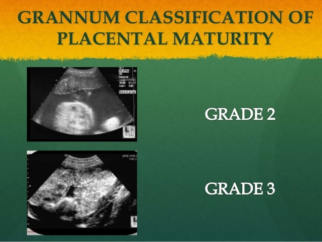 Grade 2 maturity in pregnancy