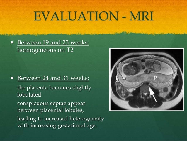 EVALUATION - MRI  Between 19 and 23 weeks: homogeneous on T2  Between 24 and 31 weeks: the placenta becomes slightly lob...
