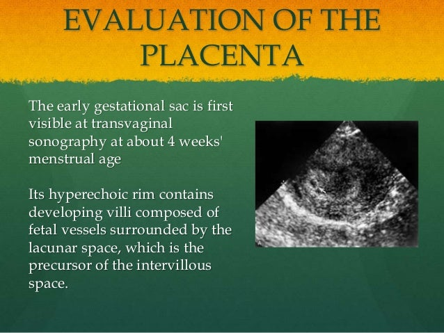 EVALUATION OF THE PLACENTA The early gestational sac is first visible at transvaginal sonography at about 4 weeks' menstru...