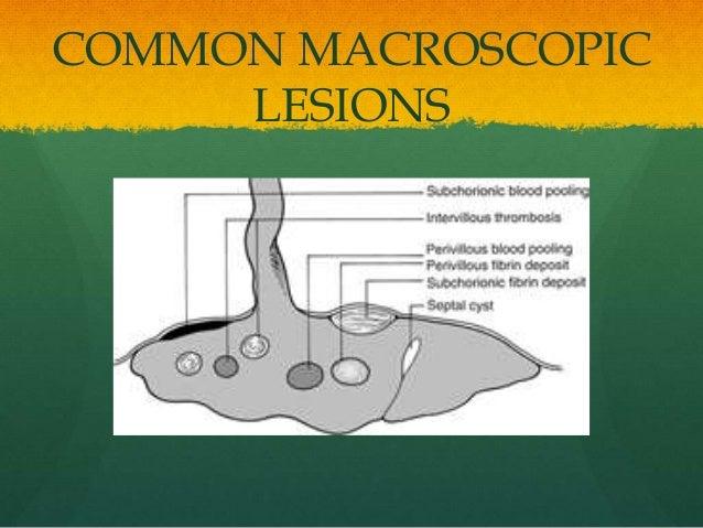 COMMON MACROSCOPIC LESIONS
