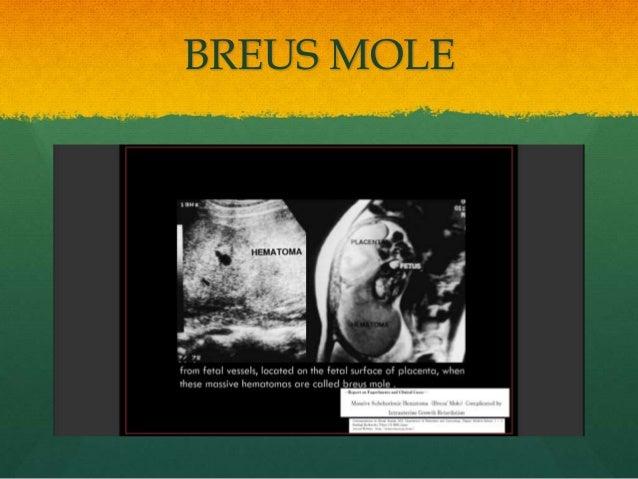 BREUS MOLE