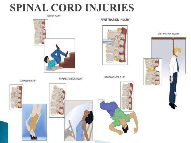 Evaluation of Spinal I...