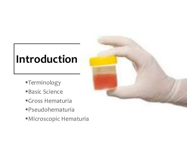 Evaluation Of The Patient With Hematuria