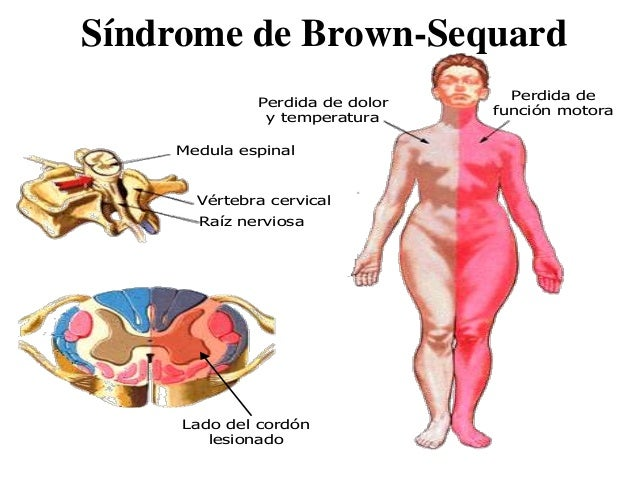 Sindrome Di Brown Sequard Pdf Zpgg Seamshasz Site