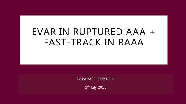 EVAR IN RUPTURED AAA + FAST-TRACK IN RAAA F2 PARACH SIRISRIRO 9th July 2018