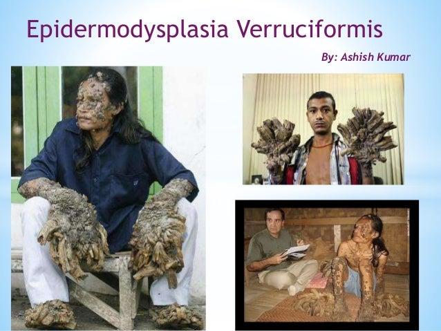 EPIDERMODYSPLASIA VERRUCIFORMIS EBOOK