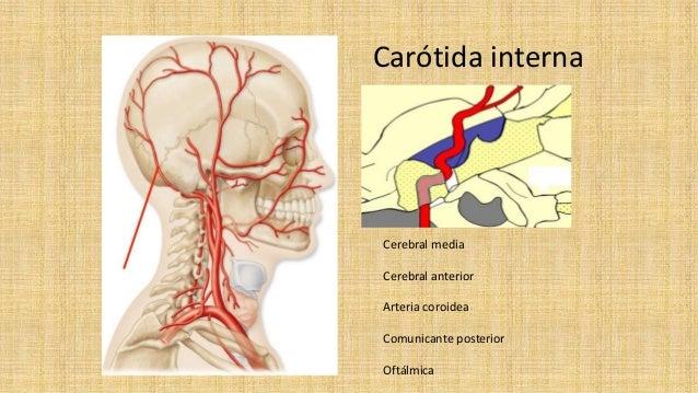 Enfermedad vascular cerebral Slide 3