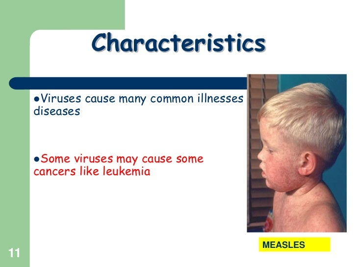 11<br />Characteristics<br />Viruses cause many common illnesses diseases             <br />Some viruses may cause some ca...