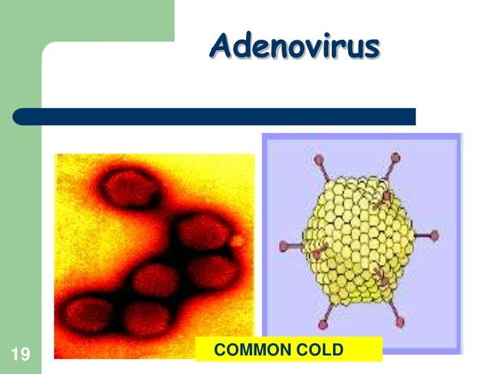 19<br />Adenovirus<br />   COMMON COLD<br />