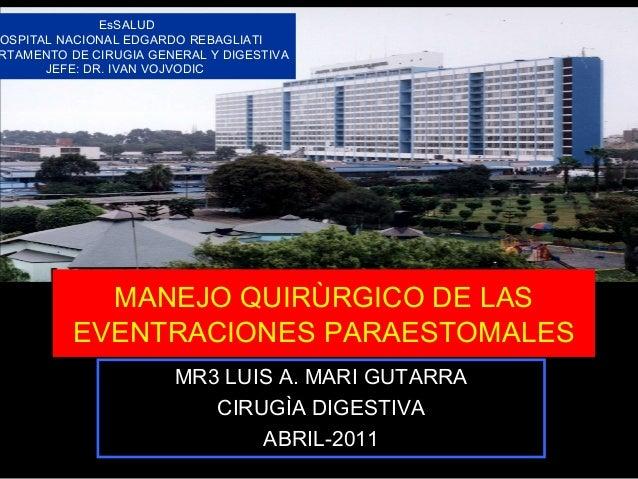 MANEJO QUIRÙRGICO DE LAS EVENTRACIONES PARAESTOMALES MR3 LUIS A. MARI GUTARRA CIRUGÌA DIGESTIVA ABRIL-2011 EsSALUD OSPITAL...
