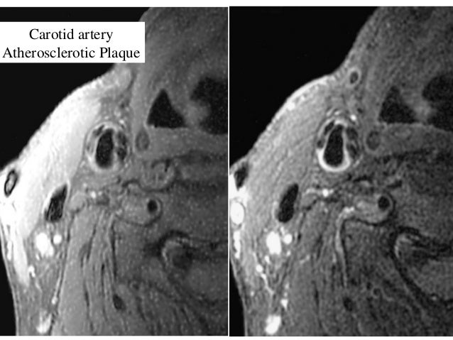 Carotid artery Atherosclerotic Plaque