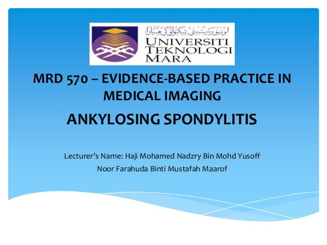 Ankylosing Spondylitis: In Clinical Practice