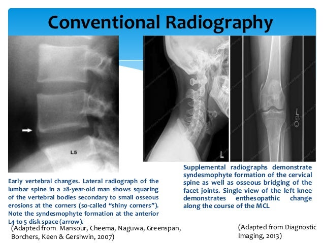 N Ray Radiography Evidence Based Practic...