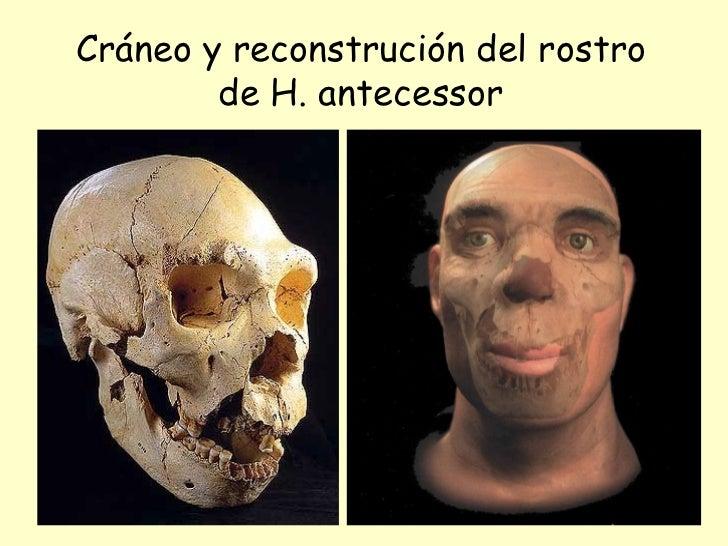 Cráneo y reconstrución del rostro de H. antecessor