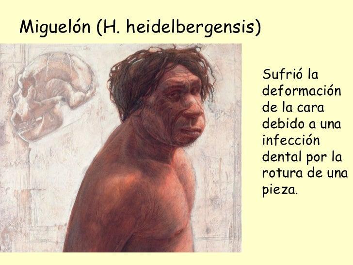 Miguelón (H. heidelbergensis) Sufrió la deformación de la cara debido a una infección dental por la rotura de una pieza.