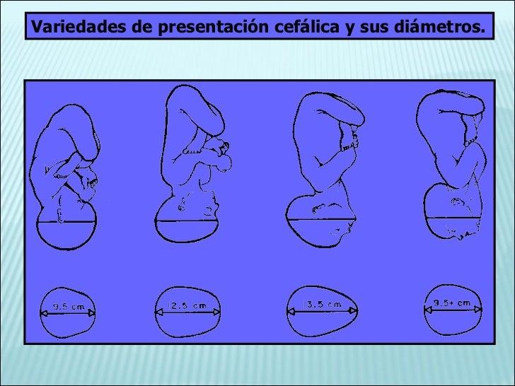 Variedades de presentación cefálica y sus diámetros.