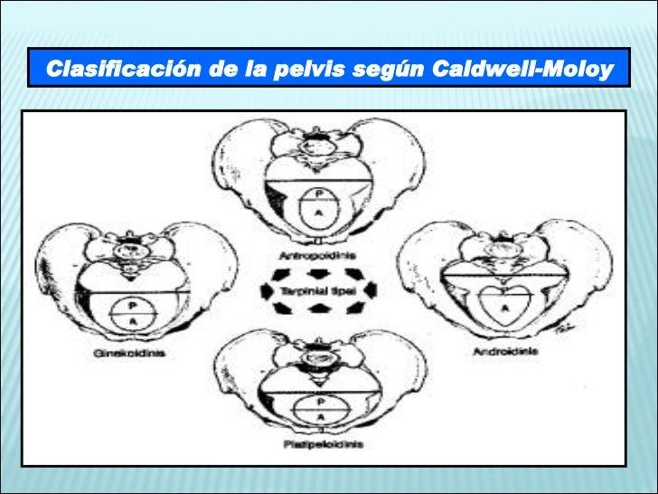 Clasificación de la pelvis según Caldwell-Moloy