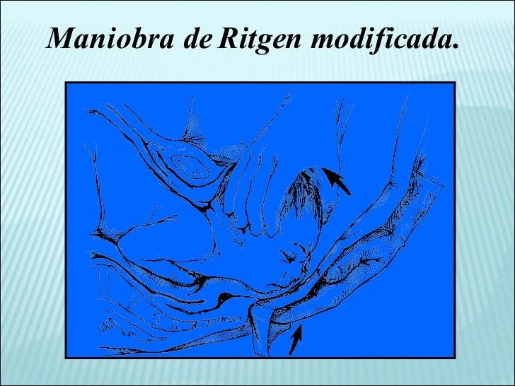 Maniobra de Ritgen modificada.