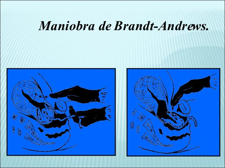 Maniobra de Brandt-Andrews.