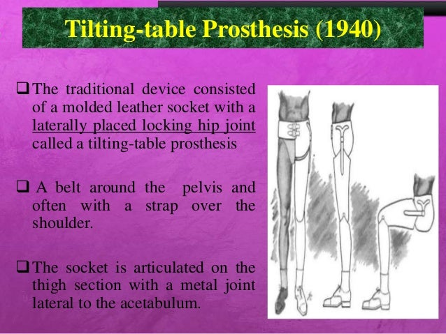 prothesis for hip disarticulation Individuals with knee or hip disarticulation wear prostheses that include the same  distal components as.