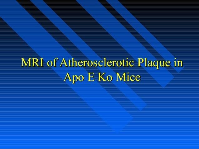 MRI of Atherosclerotic Plaque inMRI of Atherosclerotic Plaque in Apo E Ko MiceApo E Ko Mice