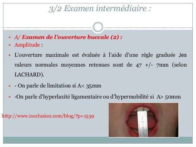3/2 Examen intermédiaire :  A/ Examen de l'ouverture buccale (2) :  Amplitude :  L'ouverture maximale est évaluée à l'a...