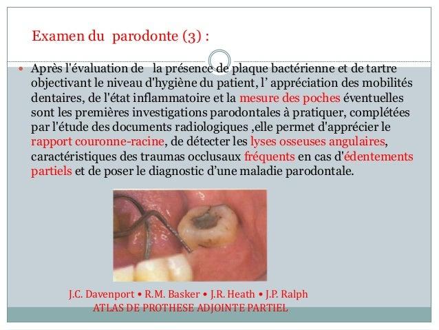  Après l'évaluation de la présence de plaque bactérienne et de tartre objectivant le niveau d'hygiène du patient, l' appr...