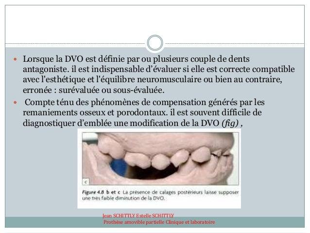  Lorsque la DVO est définie par ou plusieurs couple de dents antagoniste. il est indispensable d'évaluer si elle est corr...