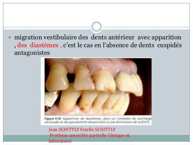  migration vestibulaire des dents antérieur avec apparition , des diastèmes , c'est le cas en l'absence de dents cuspidés...
