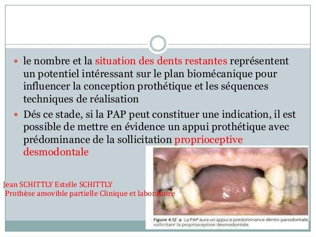  le nombre et la situation des dents restantes représentent un potentiel intéressant sur le plan biomécanique pour influe...