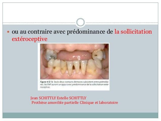  ou au contraire avec prédominance de la sollicitation extéroceptive Jean SCHITTLY Estelle SCHITTLY Prothèse amovible par...