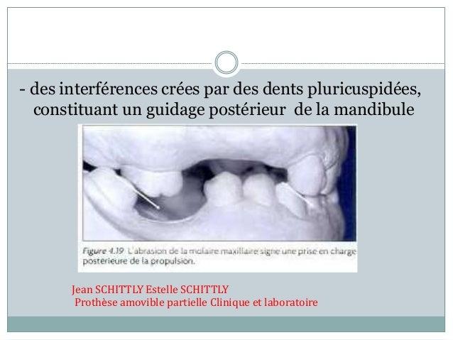 - des interférences crées par des dents pluricuspidées, constituant un guidage postérieur de la mandibule Jean SCHITTLY Es...