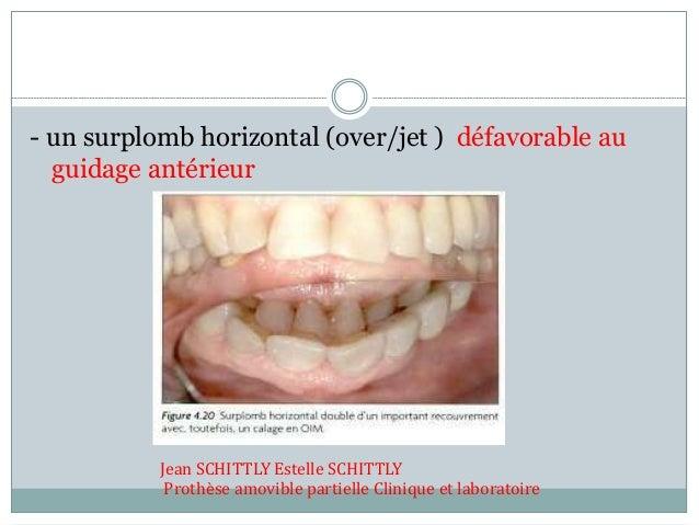 - un surplomb horizontal (over/jet ) défavorable au guidage antérieur Jean SCHITTLY Estelle SCHITTLY Prothèse amovible par...