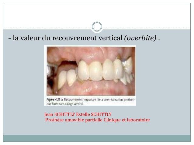 - la valeur du recouvrement vertical (overbite) . Jean SCHITTLY Estelle SCHITTLY Prothèse amovible partielle Clinique et l...