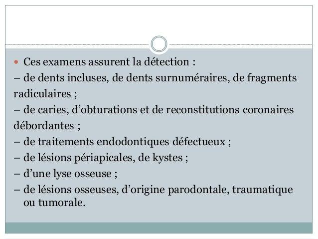  Ces examens assurent la détection : – de dents incluses, de dents surnuméraires, de fragments radiculaires ; – de caries...