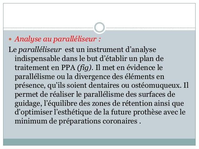  Analyse au paralléliseur : Le paralléliseur est un instrument d'analyse indispensable dans le but d'établir un plan de t...