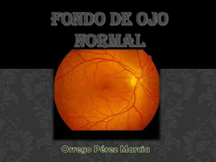 FONDO DE OJO NORMAL<br />Orrego Pérez Marcia<br />
