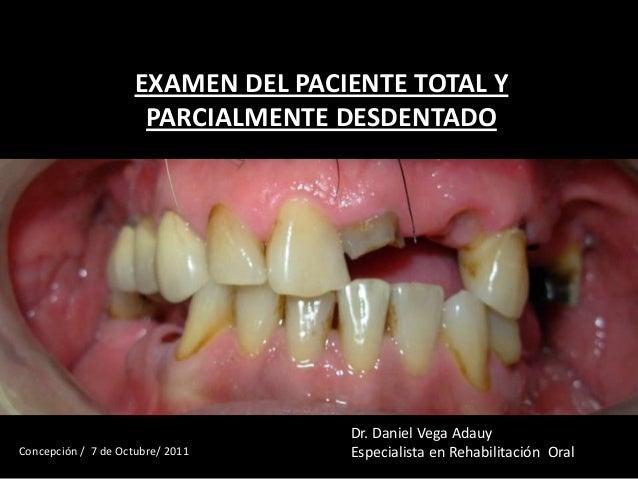 EXAMEN DEL PACIENTE TOTAL YPARCIALMENTE DESDENTADODr. Daniel Vega AdauyEspecialista en Rehabilitación OralConcepción / 7 d...