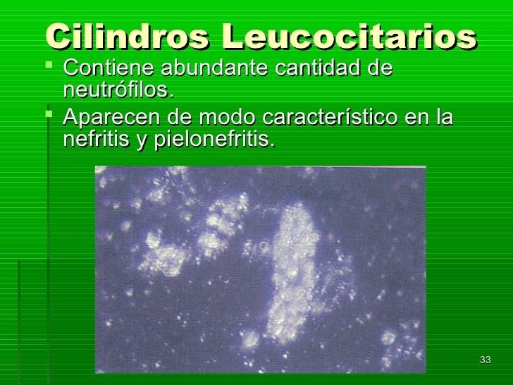 Cilindros Leucocitarios Contiene abundante cantidad de  neutrófilos. Aparecen de modo característico en la  nefritis y p...
