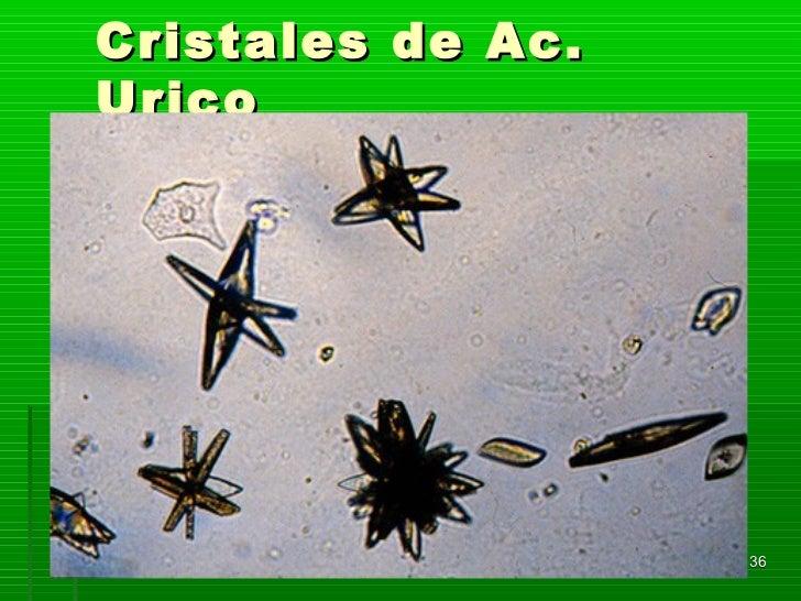 Cristales de Ac.Urico                   36