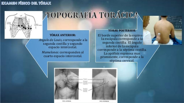 Examen de t rax for Cuarto espacio intercostal