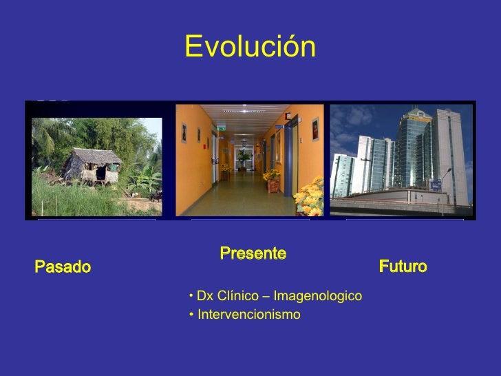 Evolución Pasado <ul><li>Presente </li></ul><ul><li>Dx Clínico – Imagenologico </li></ul><ul><li>Intervencionismo </li></u...