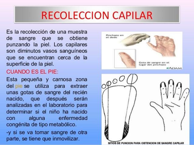 A una fuerte inflamación de las venas en el pie